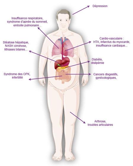 Les dangers de l'obésité pour la santé