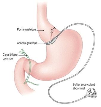 Schéma anneau gastrique